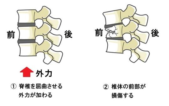 腰椎 圧迫 骨折 後遺症